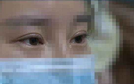 可怕!南宁女子整形后视力降至0.1,皮肤溃烂、坏死……向整形医院索赔100万元!
