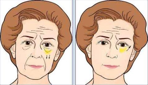 北京韩啸医疗美容整形医院正规整形医院 眼袋修复术安全吗
