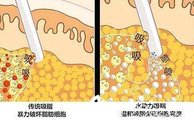 阳泉韩亚医疗美容整形医院水动力吸脂不反弹 瘦的恰到好处