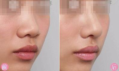 佳木斯韩艺来医疗美容整形医院硅胶隆鼻效果永久有效吗