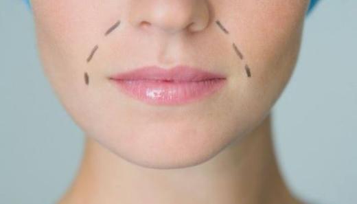 杭州口腔整形医院伊维兰去法令纹效果可长久有效