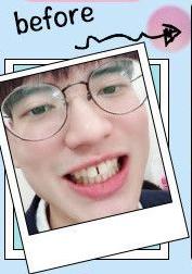 去武汉爱齿尔口腔整形做牙齿矫正 我的颜值回升啦