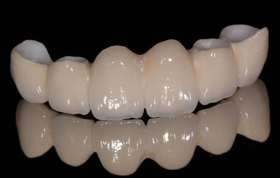 杭州美奥口腔医院烤瓷牙技术怎么样 逼真美观终身受用