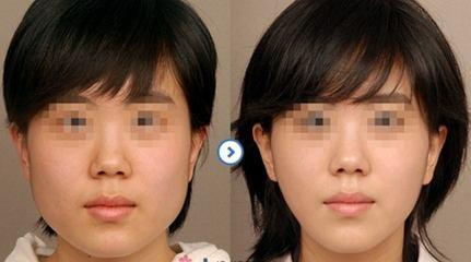 福州名韩整形瘦脸针年卡特价2019元