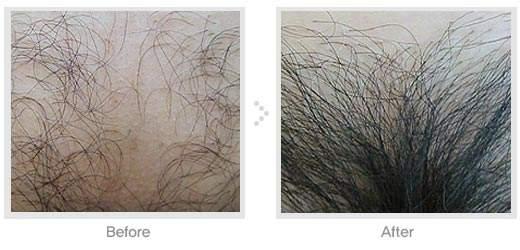 杭州天大毛发移植整形医院阴毛种植 毛发生长更贴近自然