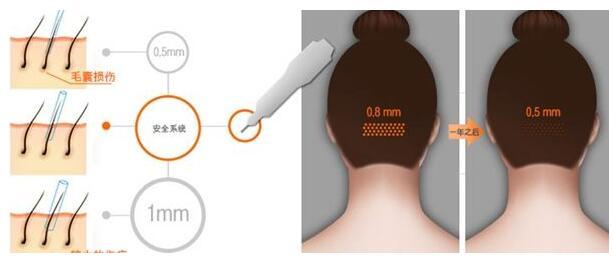福州第八医院毛发移植中心头发种植 永久性植发