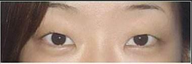 在合肥华美做了切开双眼皮手术 再也不用每天贴双眼皮贴啦