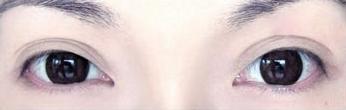 北京武警总队医院睫毛种植案例 对比图 和真眉睫毛没区别