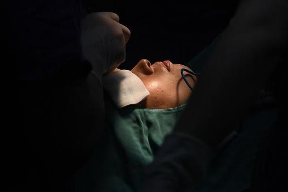大二女生为了好看去隆鼻死亡,整容风险有多大?10年毁20万张脸
