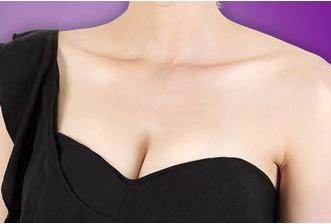 廊坊凯润婷乳房再造 重新做回完整有魅力的女人