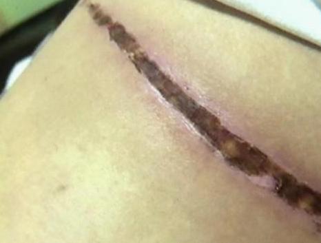 杭州聂女士整形致残 大腿吸脂 留下十几厘米长疤痕