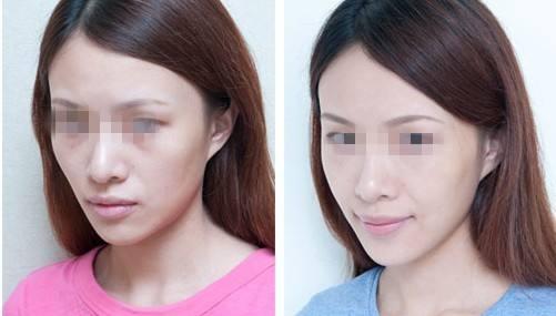 石家庄美莱医学美容院自体脂肪丰面颊 高水准美容技术服务