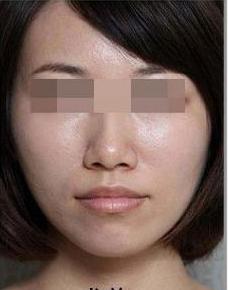 广州人民医院激光美容科彩光祛痘后 皮肤自带美颜效果