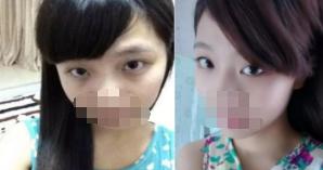 """沈阳丽都整形医院激光祛黑眼圈 不再做""""熊猫眼""""女孩"""