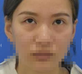 在青岛华韩去除眼袋后 我更有少女感了