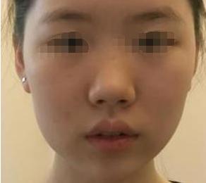到武汉涵美做了膨体隆鼻后,我的清纯变得更有魅力了