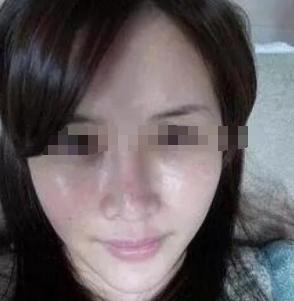 成都天使之翼整形医院光子嫩肤 改善油性肤质脸真实案例