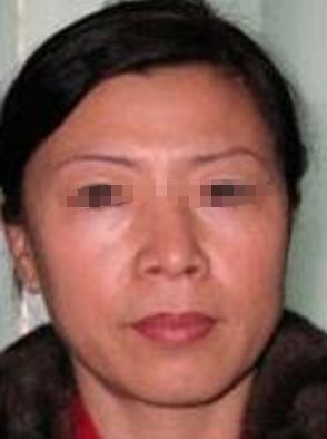 上海博爱医院医疗皮肤科激光去皱 用过才敢说好