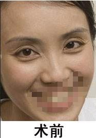 广安阿蓝医院祛皱怎么样 激光除皱技术已相当成熟