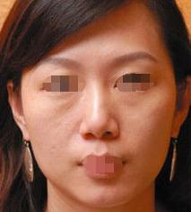 桂林星范医美整形医院电波拉皮除皱 解除了我的皱纹横生