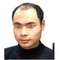 在武汉雍禾植发医院做了头发种植 让我有了焕然一新的感觉