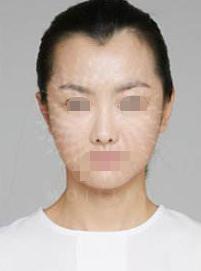 发际线丑出天际 去广州科发源植发医院做了植发后自然多了