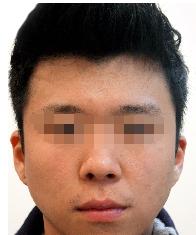 种植胡须的不二选择 福州曙光植发为我迎来了第二春
