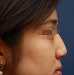 如何让自己更精致美丽 来石家庄诺万整形做自体软骨垫鼻尖