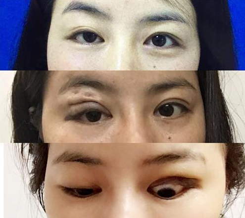 深圳一女子花 26800 元做眼部整形 术后竟变大小眼