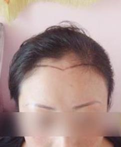 到重庆星宸种植头发后,我才知道什么是女人味