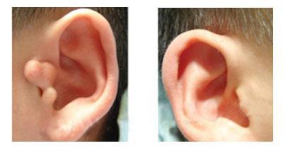 成都蜀尚蓉雅整形医院副耳切除术 修正面部缺陷