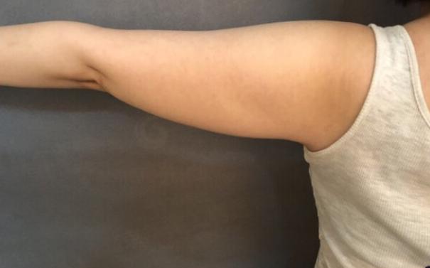 沈阳欣博美整形医院手臂吸脂 减掉拜拜肉的历程