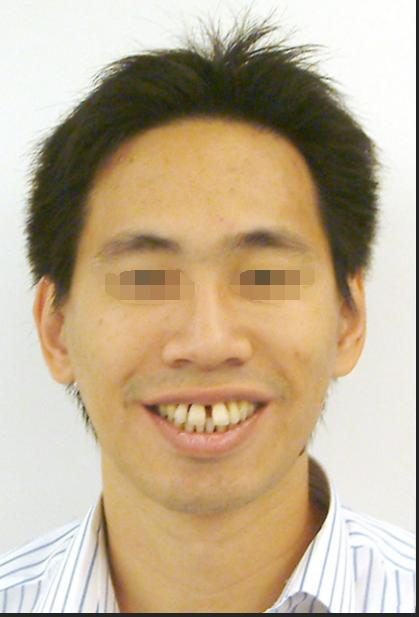 武汉德亚口腔医疗治好了我门牙有缝 希望新年能找到好对象