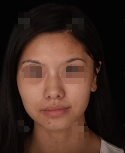 沈阳盛京尚整形医院光子嫩肤 邋遢女变精致的案例分享