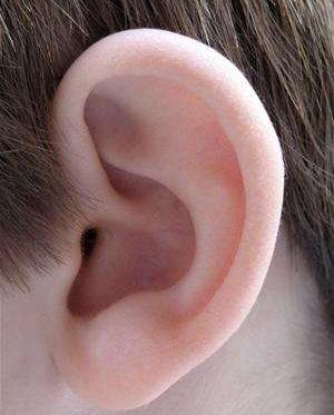 合肥博士整形美容医院耳垂裂开修复 有疤痕增生倾向者慎重