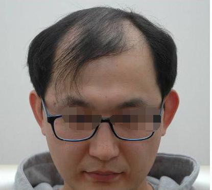广州倍生植发医疗整形毛发移植 让我头发自然浓密
