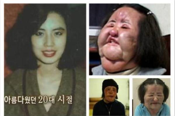 57岁韩国女星整容过度离世,生前手术17次,原貌曝光像林允儿