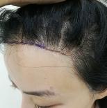 沈阳欧华美容医院种植发际线 拒绝做大秃瓢