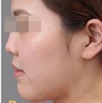 长春长青丽人整形玻尿酸隆鼻 医生根据我鼻部软骨形态设计