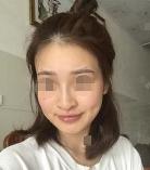 邯郸韩雅医疗整形医院下颌角整形 变身美丽新娘案例分享