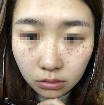 太原美之妍整形医院激光祛斑 我的脸终于干净了