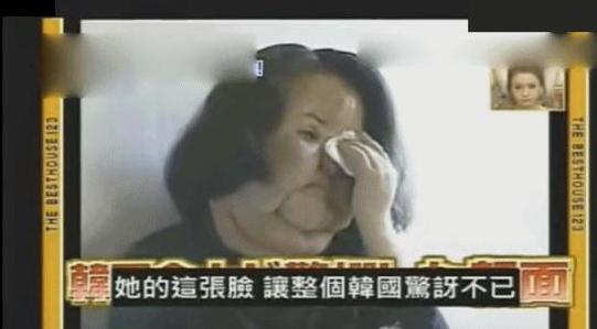 韩整容女星57岁过世,生前色拉油注入全脸9年无法闭眼