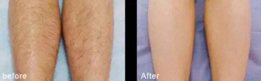 如何有效去除体毛 激光脱毛从根源解决问题