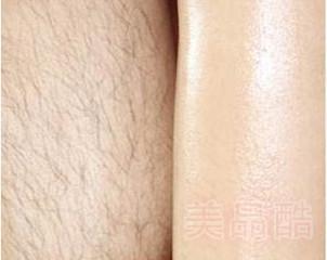 金华广福整形激光脱毛 最终刺激毛囊萎缩