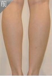 长沙天一医疗整形打瘦腿针 让我轻松get大长腿