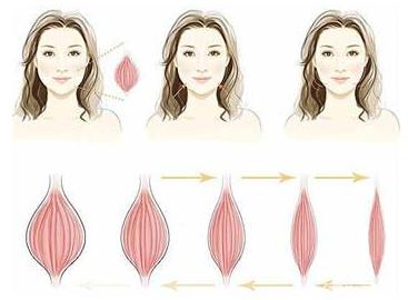 肉毒素打的越多效果越久 过量注射肉毒素瘦脸让人悔不当初