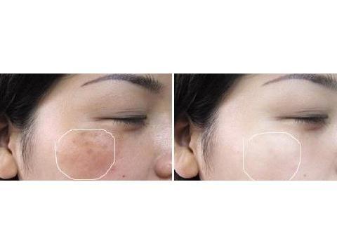 天津伊美尔医疗整形激光祛雀斑 也适合其他色素型皮肤治疗