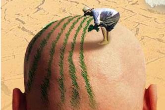 西安西美头发种植 脱发问题终于解决了