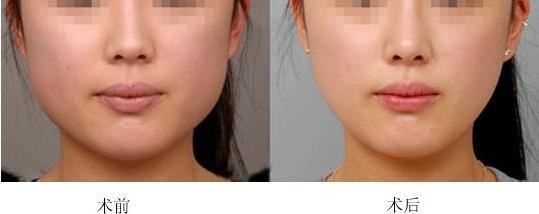 无锡瑞秋整形医院衡力瘦脸针特价 2月特价