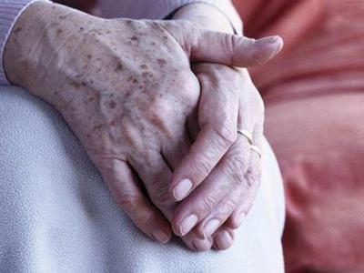 重庆中成整形激光祛老年斑 将沉积于皮肤的色素物质击碎